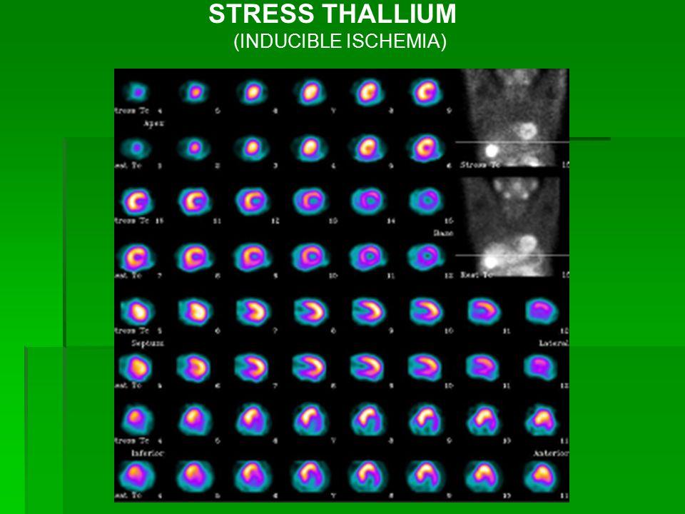 STRESS THALLIUM (INDUCIBLE ISCHEMIA)