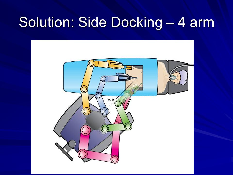 Solution: Side Docking – 4 arm