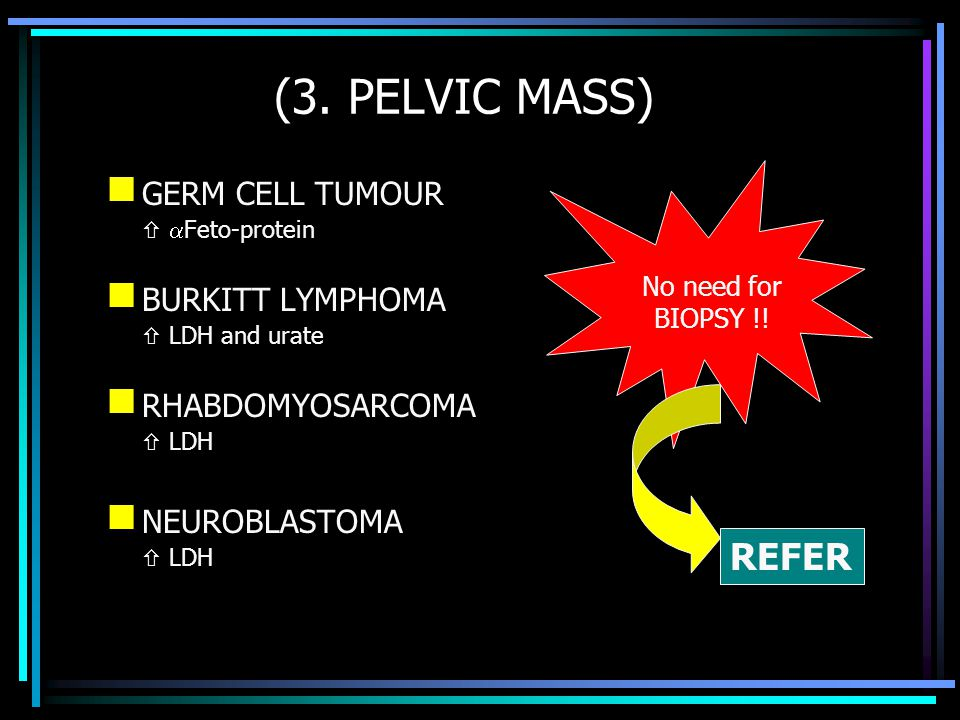 (3. PELVIC MASS) REFER GERM CELL TUMOUR BURKITT LYMPHOMA