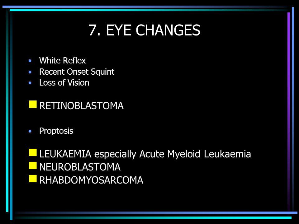 7. EYE CHANGES RETINOBLASTOMA
