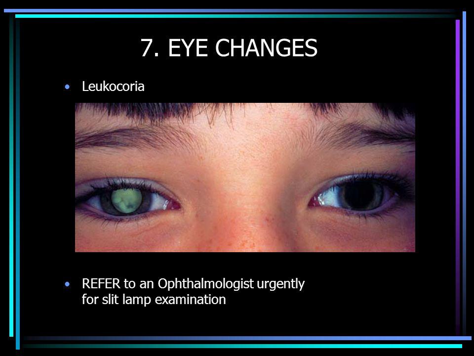 7. EYE CHANGES Leukocoria