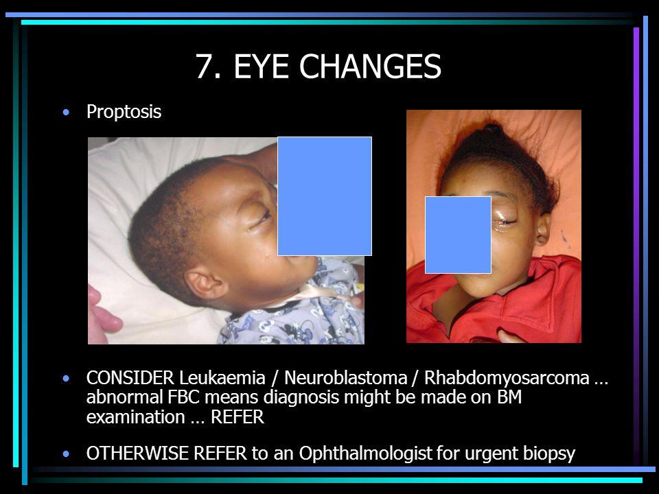 7. EYE CHANGES Proptosis.