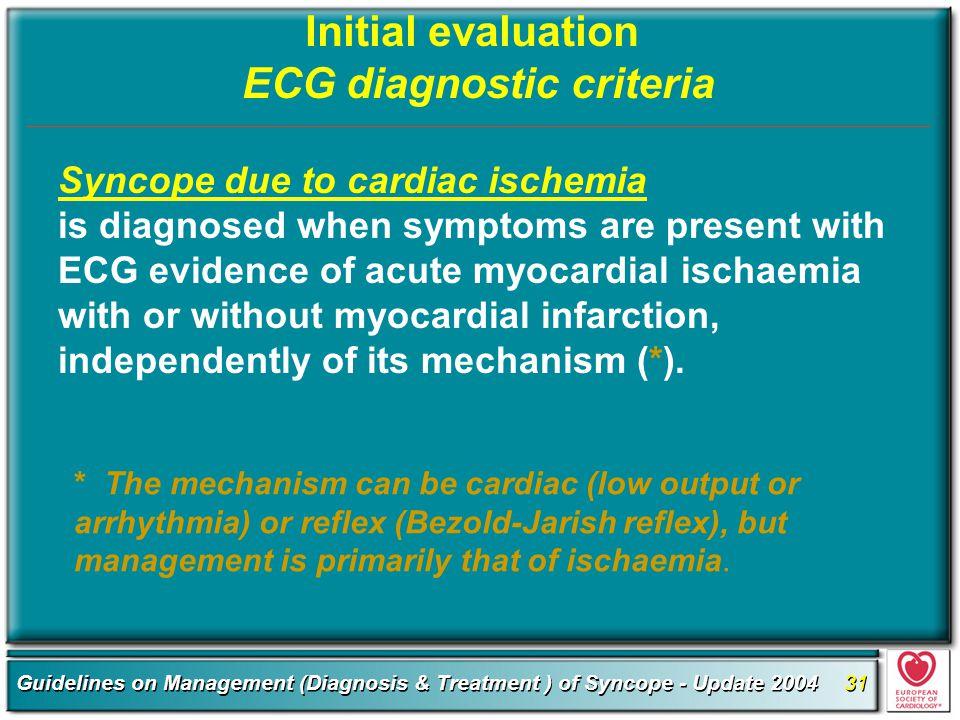 ECG diagnostic criteria