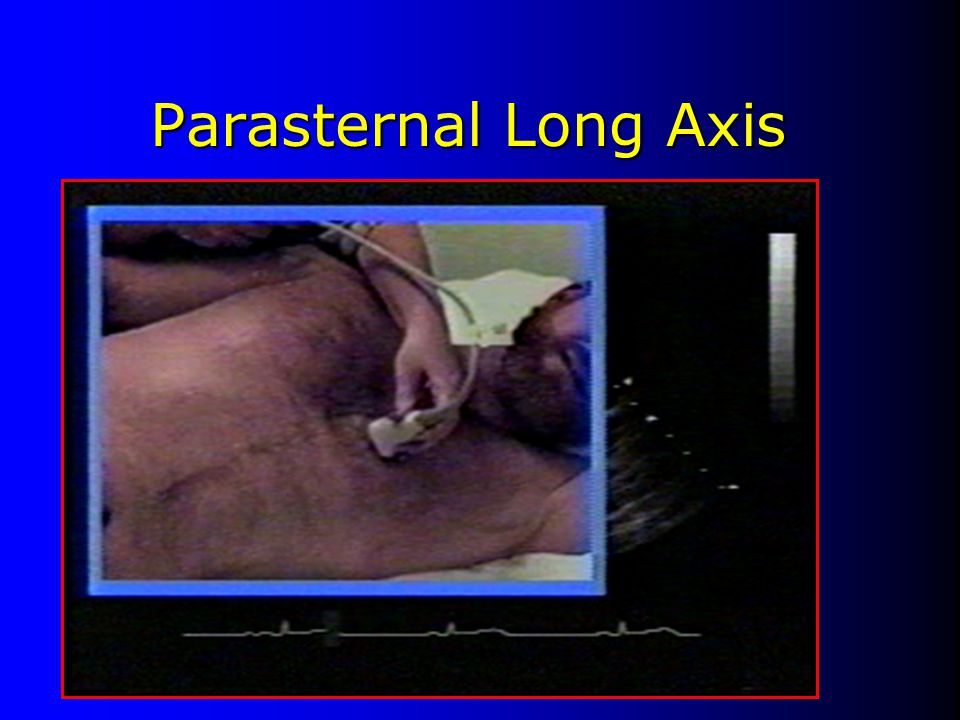 Parasternal Long Axis