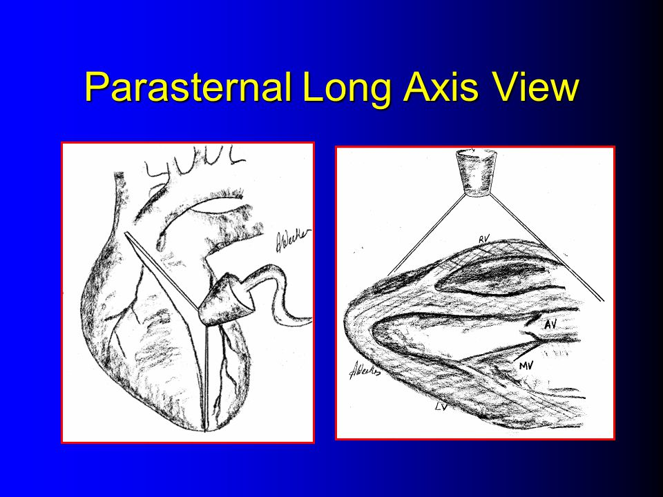 Parasternal Long Axis View