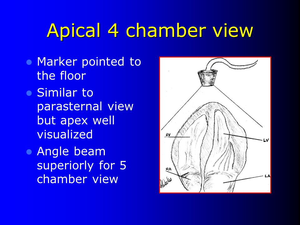 Apical 4 chamber view Marker pointed to the floor