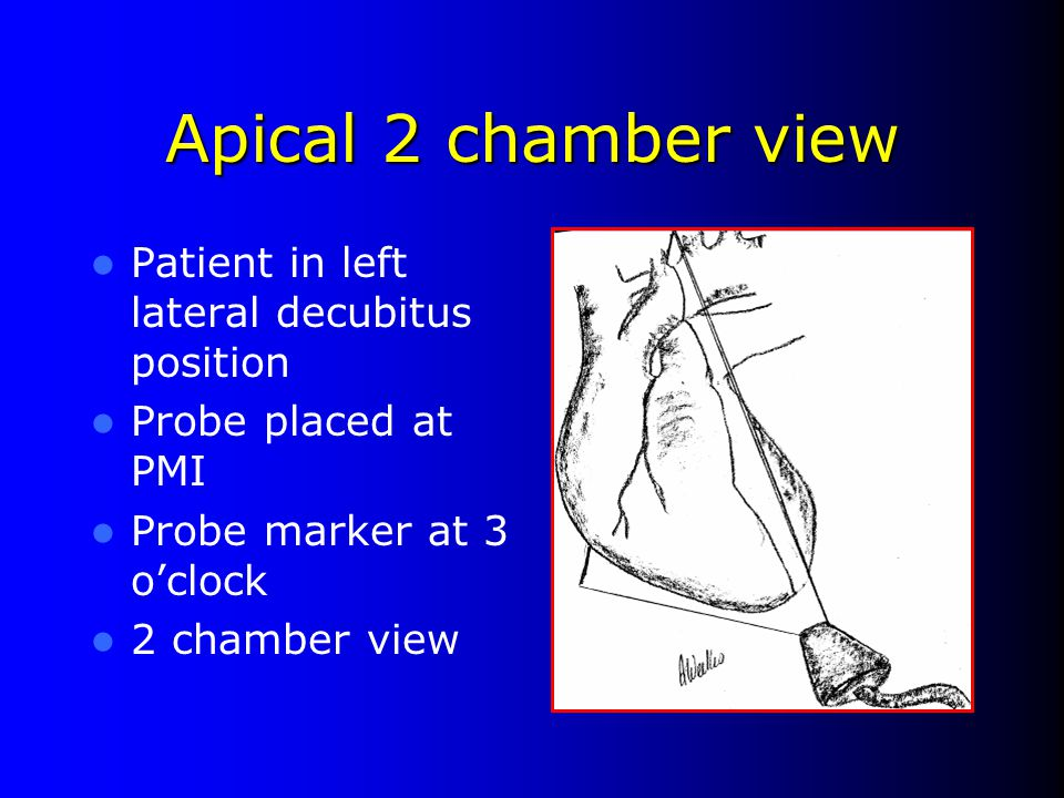 Apical 2 chamber view Patient in left lateral decubitus position
