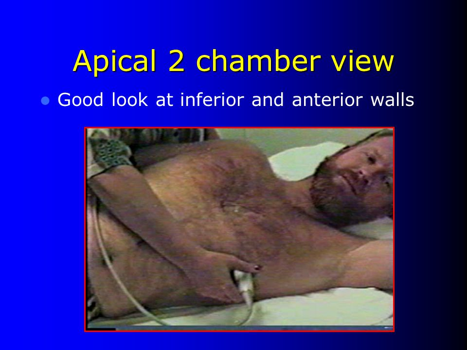 Apical 2 chamber view Good look at inferior and anterior walls