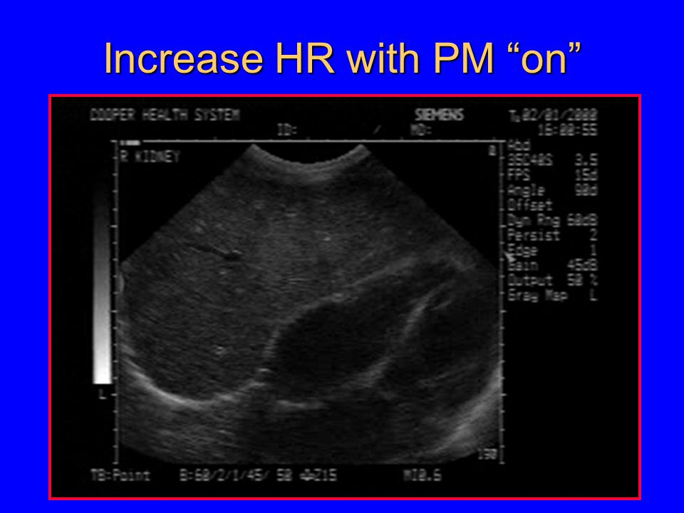 Increase HR with PM on