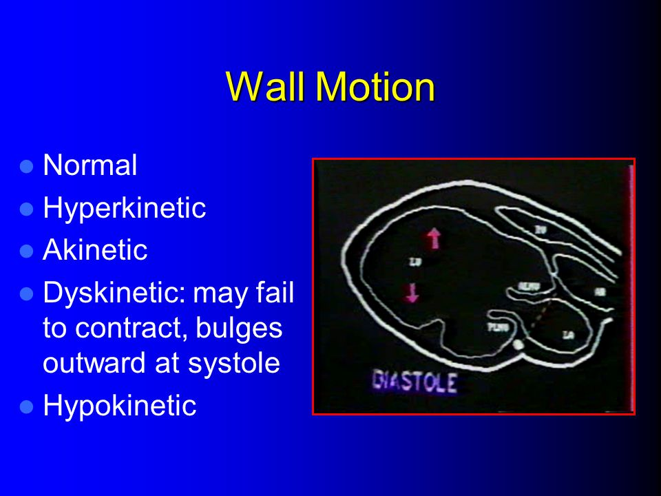 Wall Motion Normal Hyperkinetic Akinetic