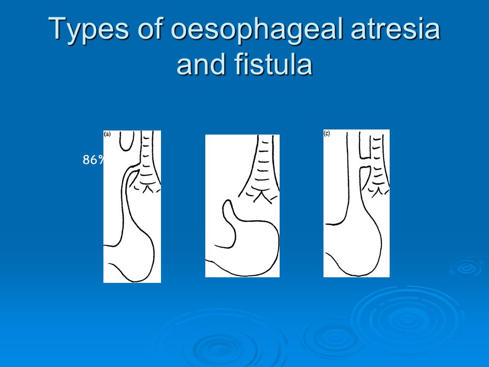 Types of oesophageal atresia and fistula