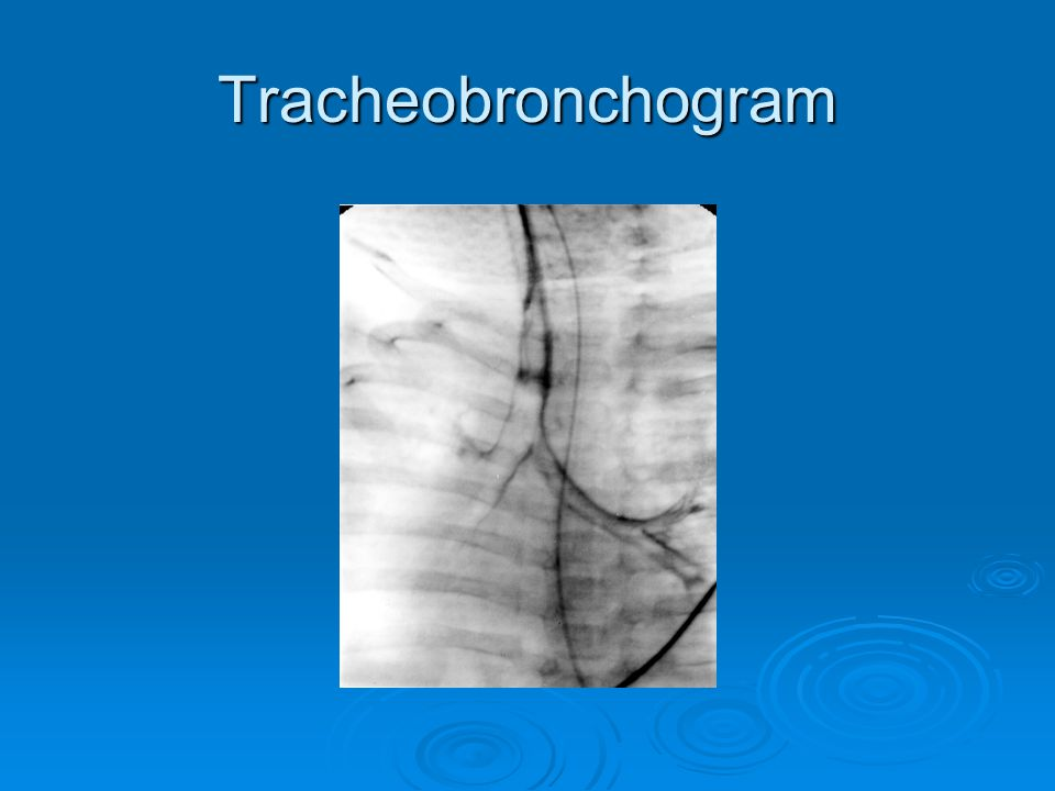 Tracheobronchogram