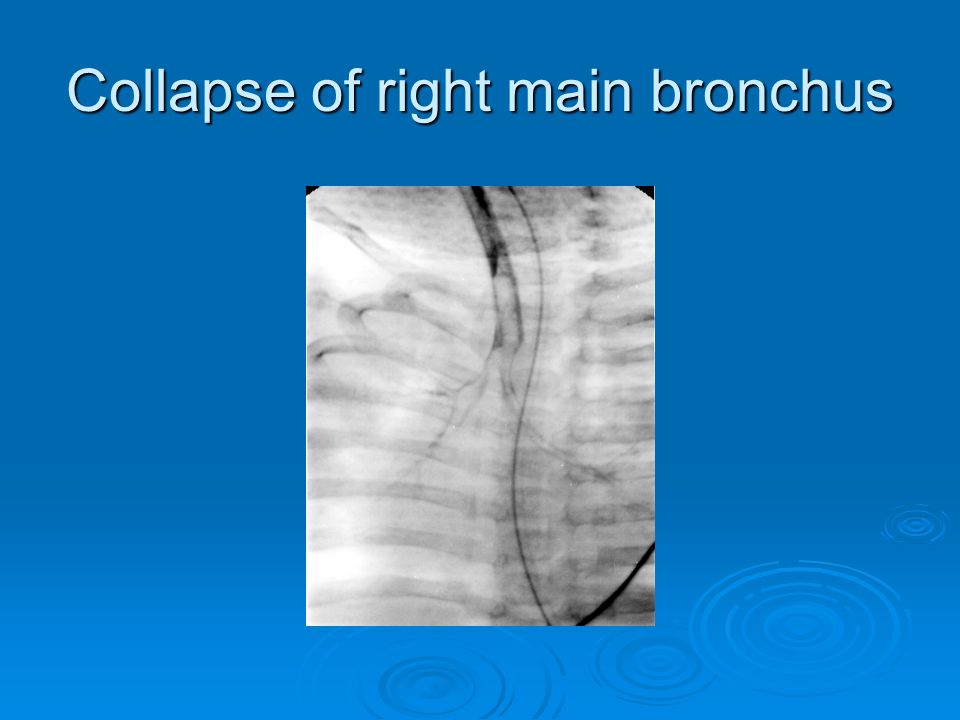Collapse of right main bronchus