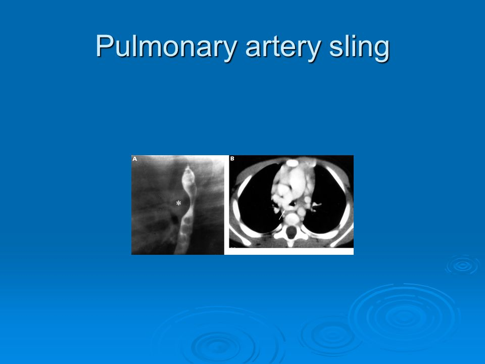 Pulmonary artery sling