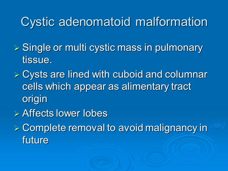 Cystic adenomatoid malformation