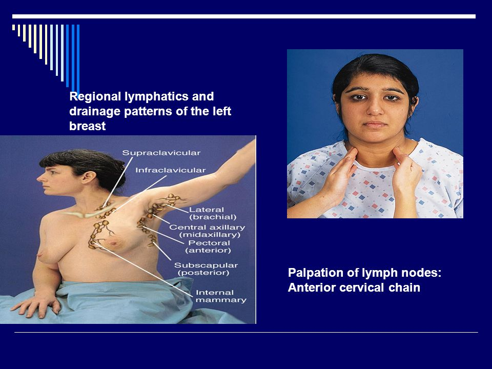 Regional lymphatics and drainage patterns of the left breast