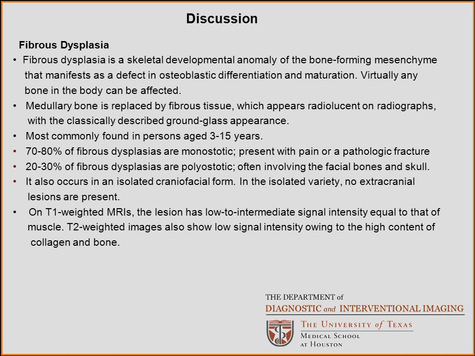 Discussion Fibrous Dysplasia
