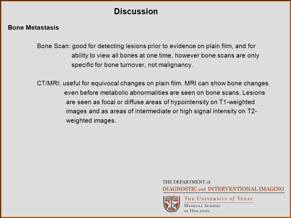 Discussion Bone Metastasis