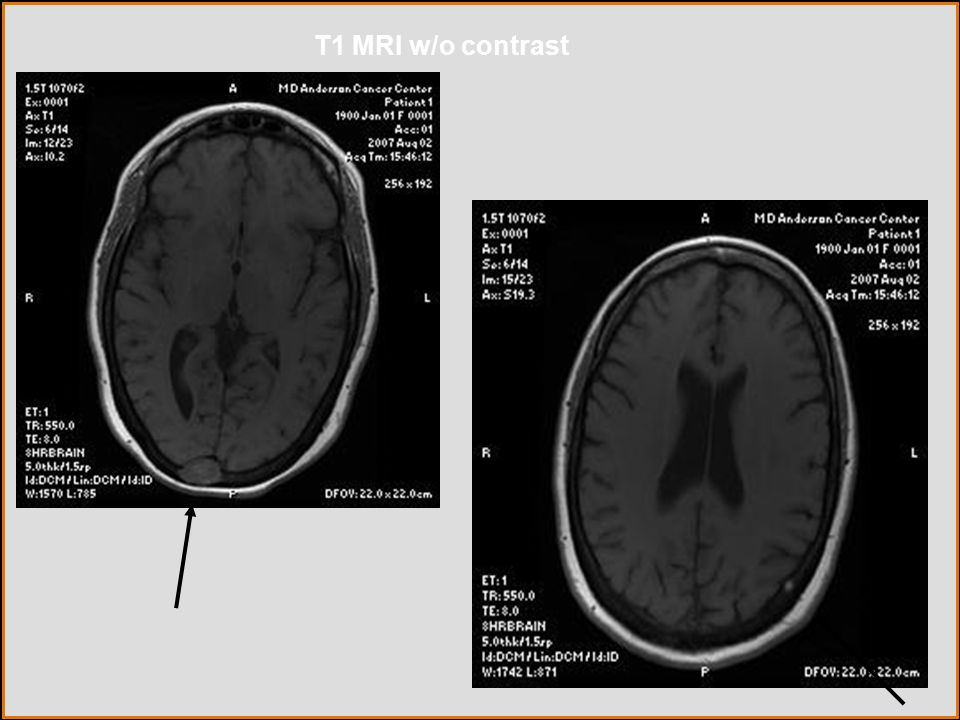 T1 MRI w/o contrast