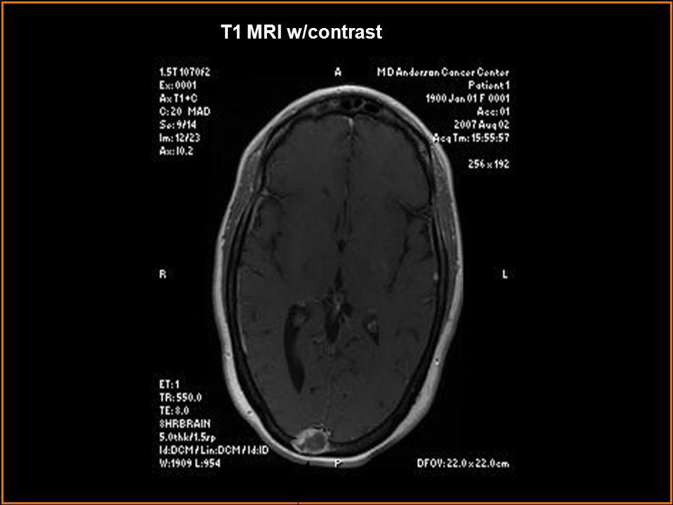 T1 MRI w/contrast