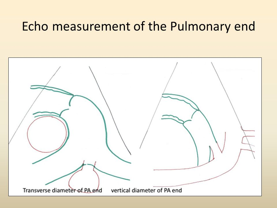 Echo measurement of the Pulmonary end