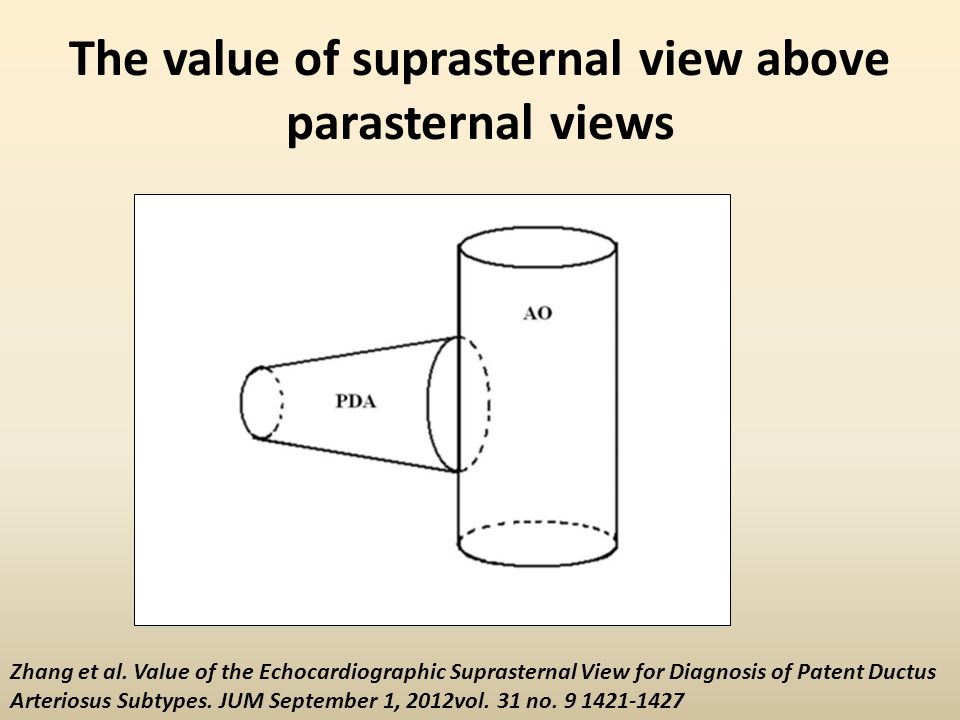 The value of suprasternal view above parasternal views