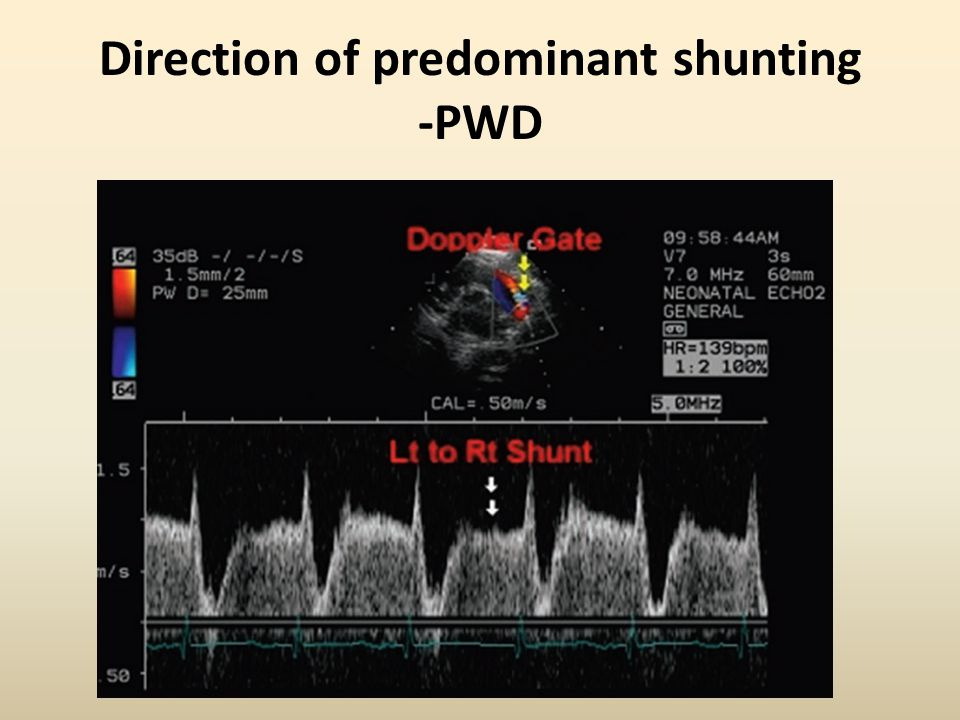 Direction of predominant shunting -PWD
