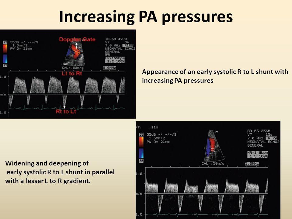 Increasing PA pressures
