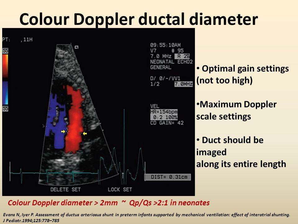 Colour Doppler ductal diameter