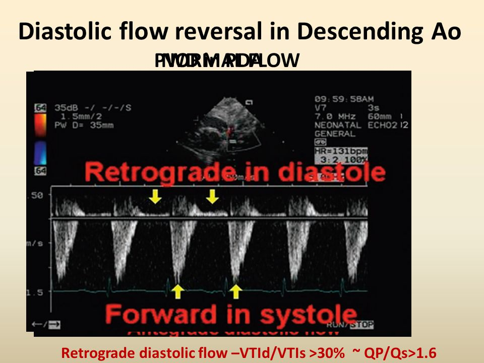 Diastolic flow reversal in Descending Ao