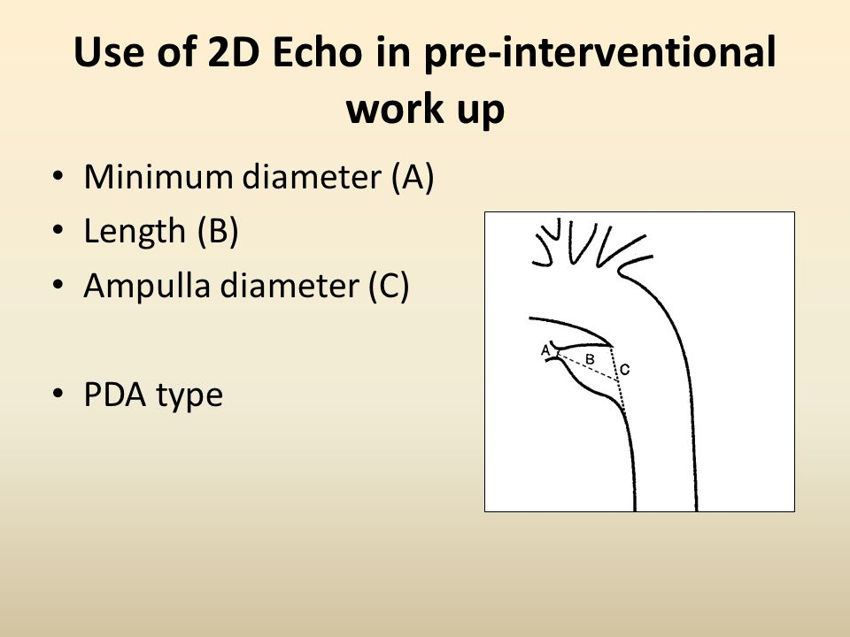 Use of 2D Echo in pre-interventional work up