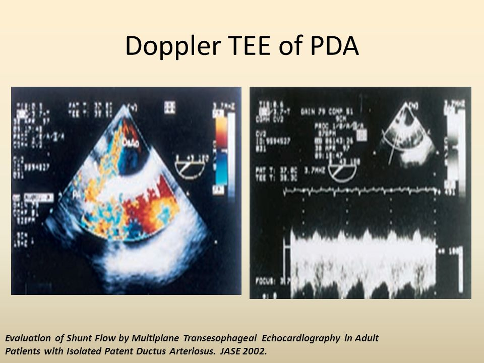 Doppler TEE of PDA Evaluation of Shunt Flow by Multiplane Transesophageal Echocardiography in Adult.