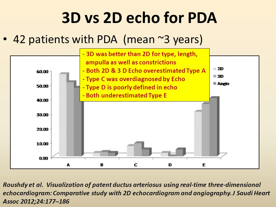 3D vs 2D echo for PDA 42 patients with PDA (mean ~3 years)