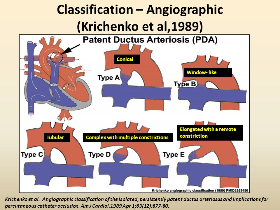 Classification – Angiographic (Krichenko et al,1989)