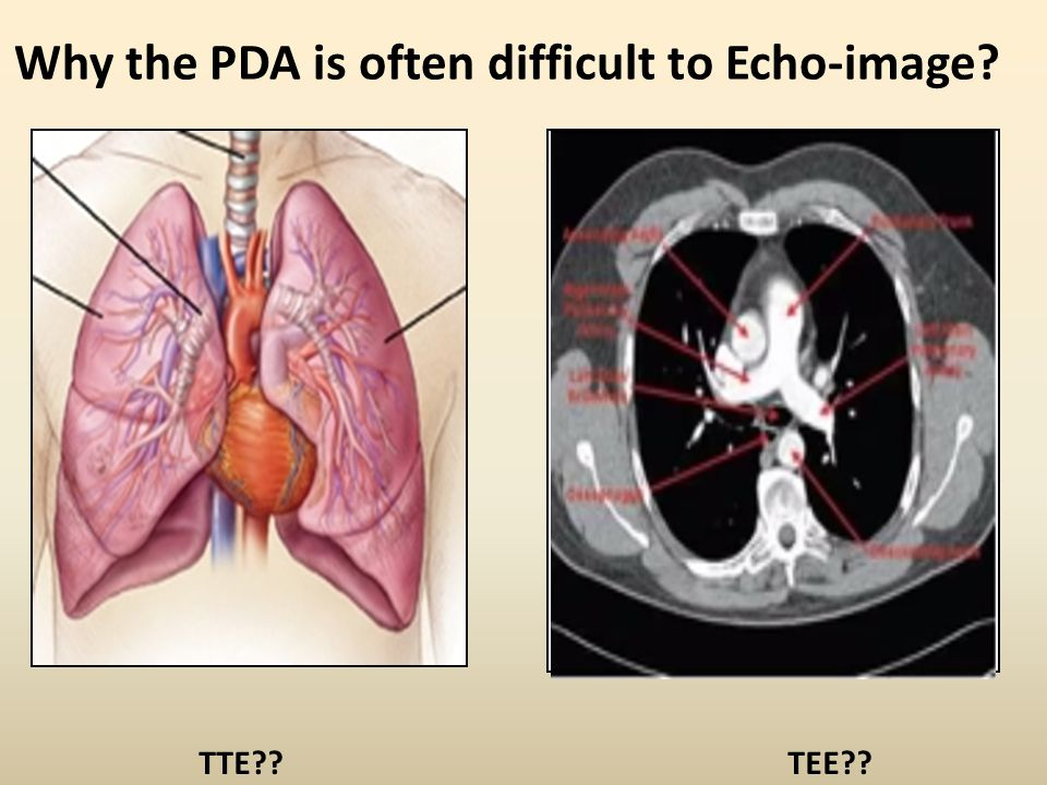 Why the PDA is often difficult to Echo-image