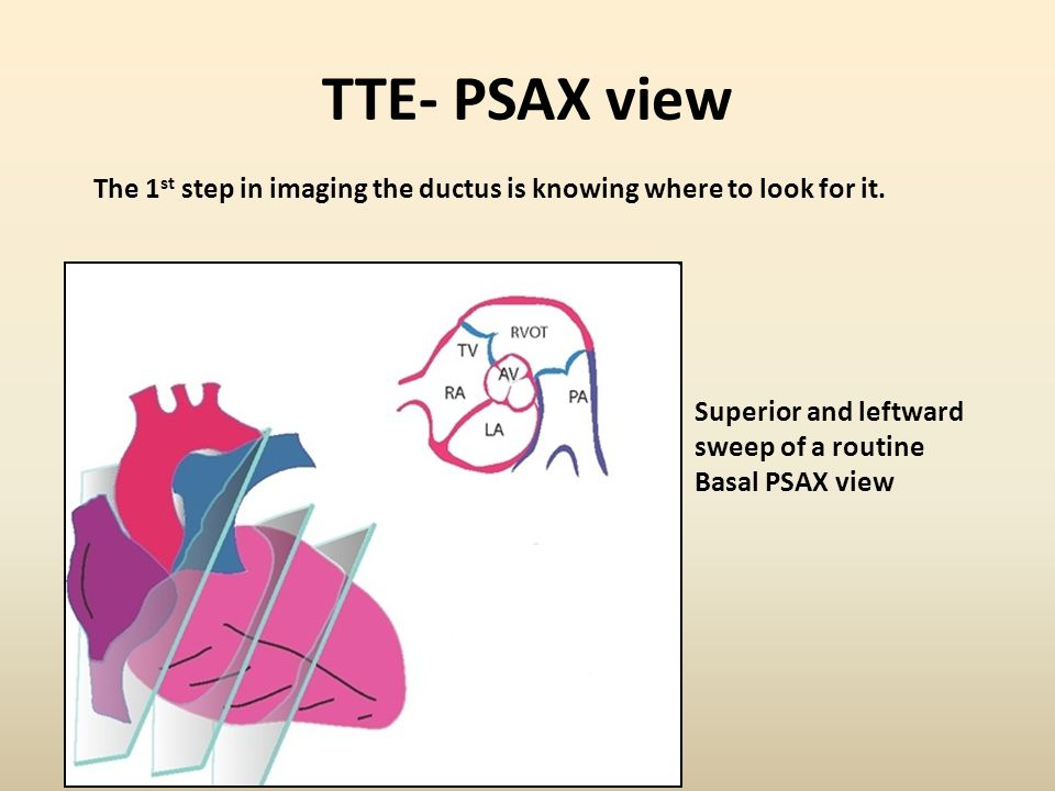 TTE- PSAX view The 1st step in imaging the ductus is knowing where to look for it. Superior and leftward.