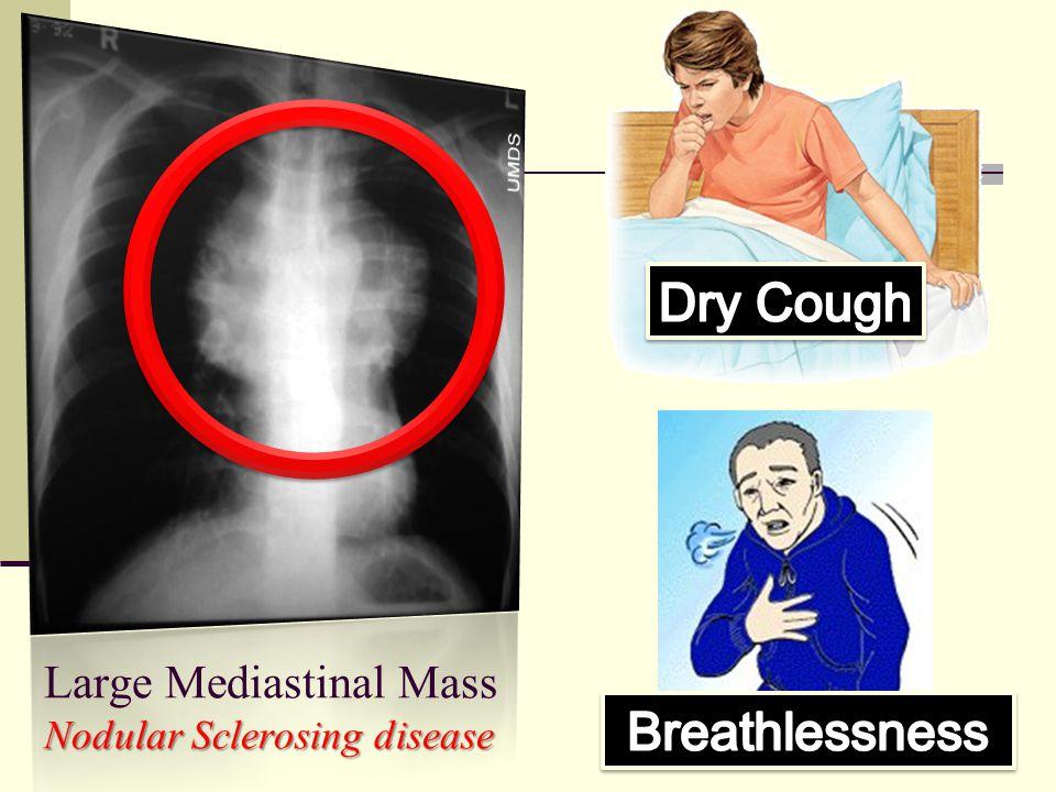 Large Mediastinal Mass Nodular Sclerosing disease