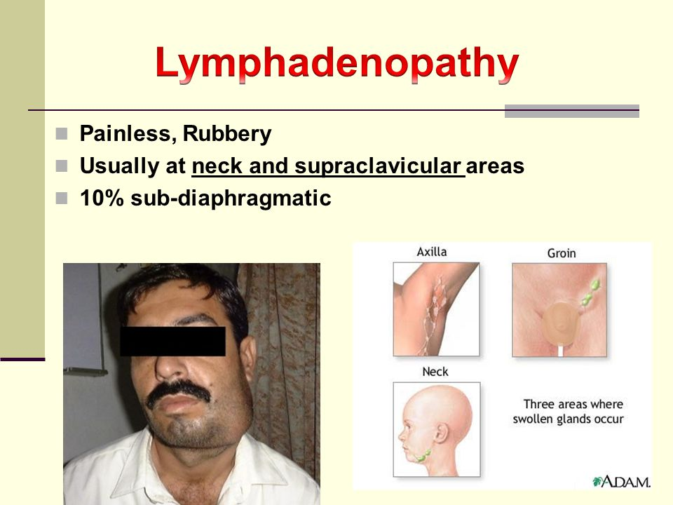 Lymphadenopathy Painless, Rubbery