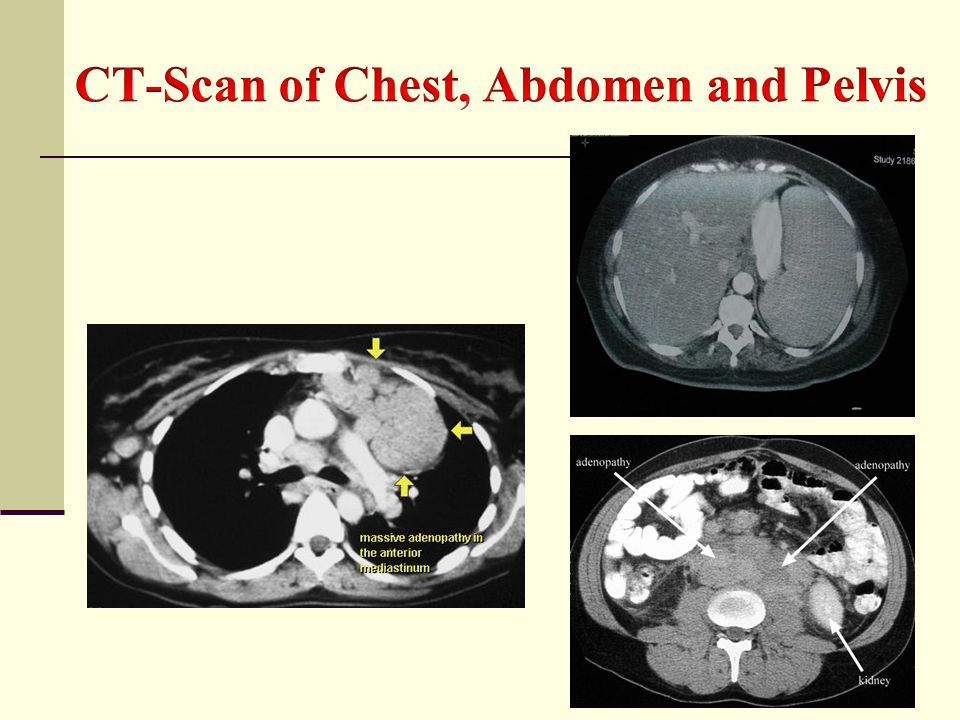 CT-Scan of Chest, Abdomen and Pelvis