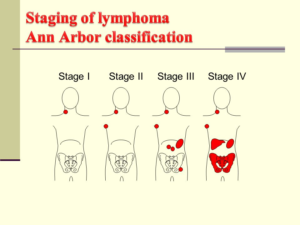 Staging of lymphoma Ann Arbor classification
