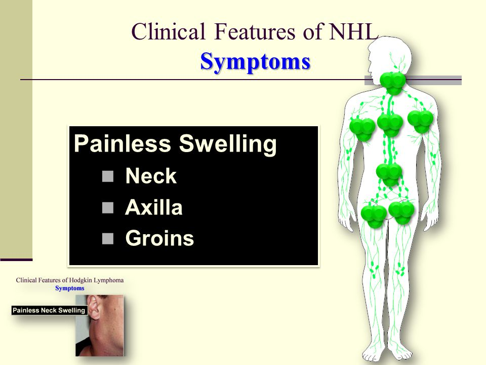 Clinical Features of NHL Symptoms