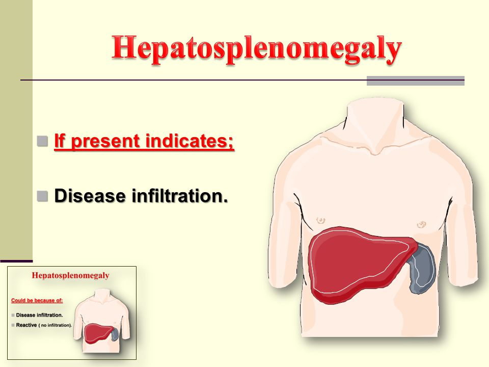 Hepatosplenomegaly If present indicates; Disease infiltration.