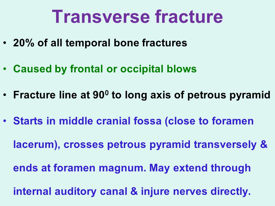 Transverse fracture 20% of all temporal bone fractures