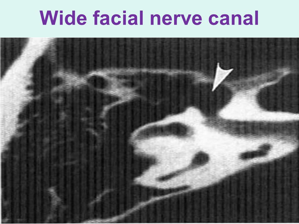 Wide facial nerve canal