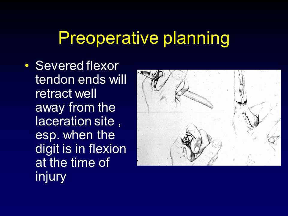 Preoperative planning