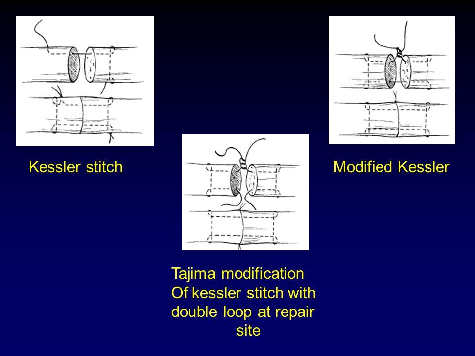 Kessler stitch Modified Kessler. Tajima modification. Of kessler stitch with. double loop at repair.