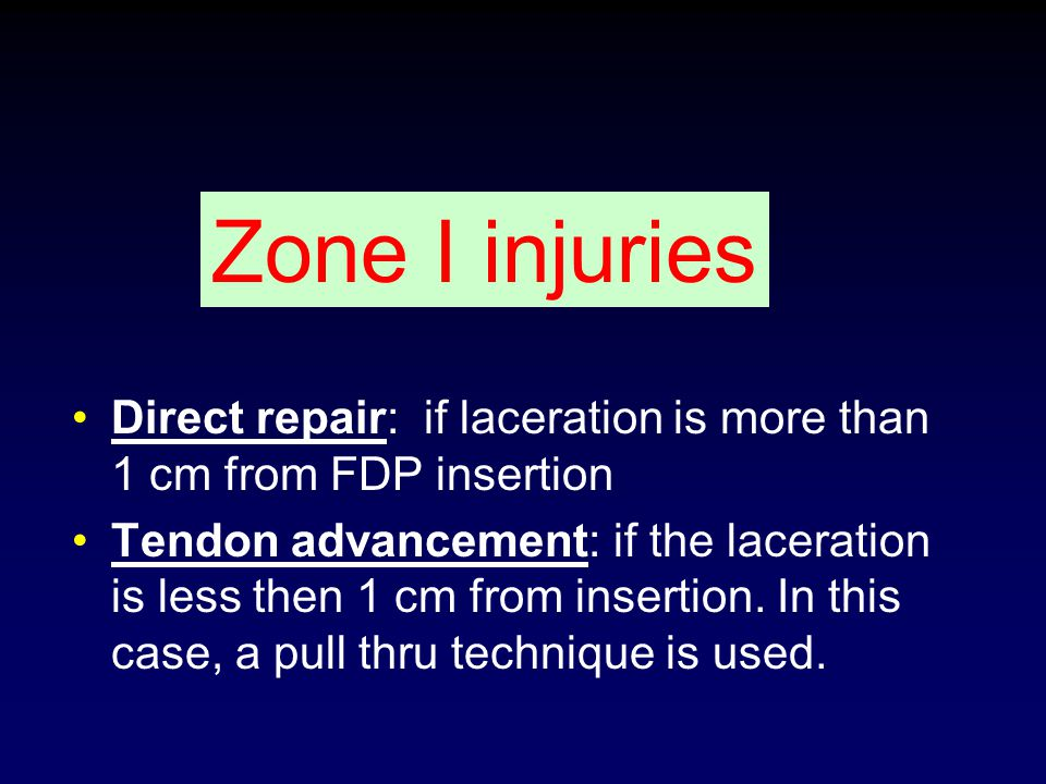 Zone I injuries Direct repair: if laceration is more than 1 cm from FDP insertion.