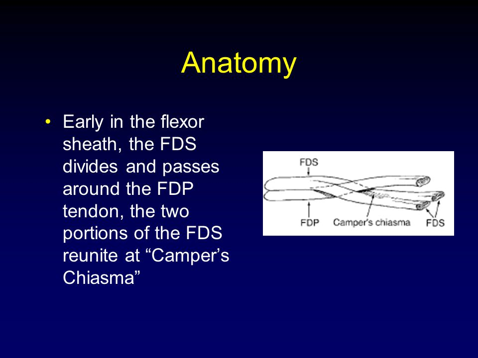 Anatomy Early in the flexor sheath, the FDS divides and passes around the FDP tendon, the two portions of the FDS reunite at Camper's Chiasma