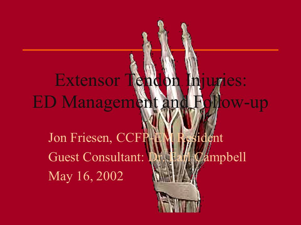 Extensor Tendon Injuries: ED Management and Follow-up