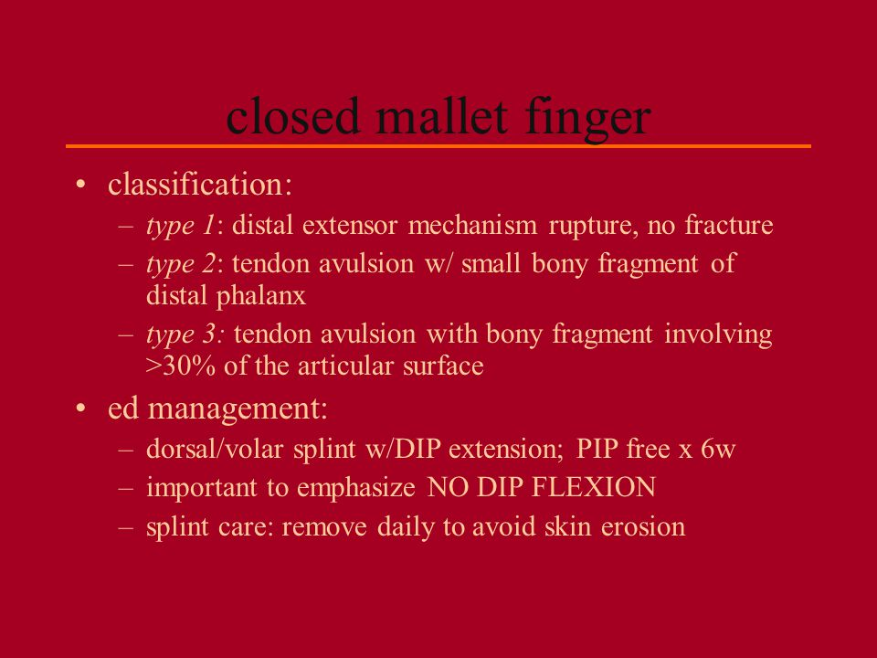 closed mallet finger classification: ed management: